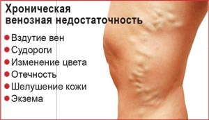 Симптомы ХВН
