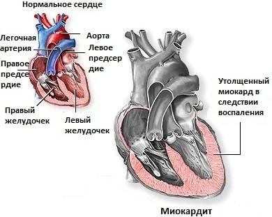 Симптомы миокардита