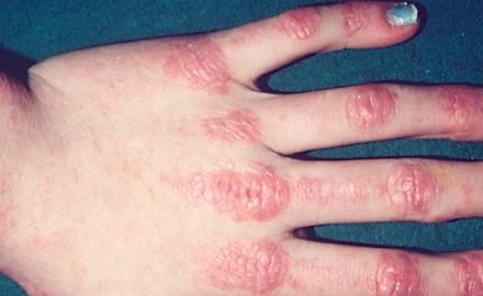 Симптомы полимиозита