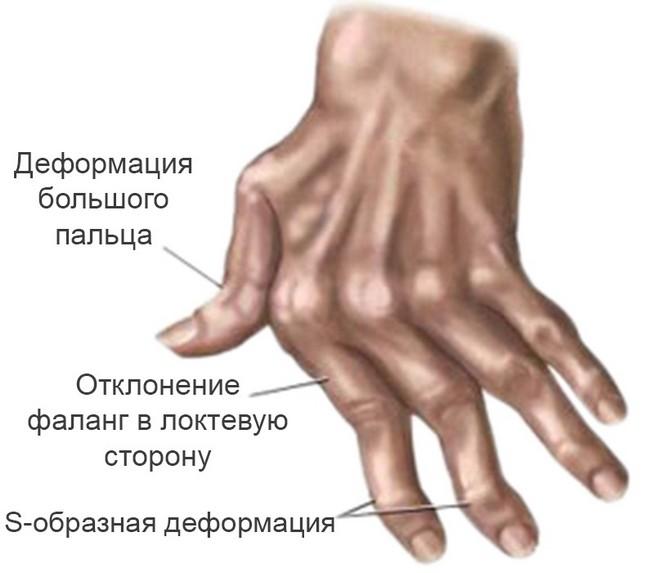 Артрит суставов какие симптомы этой болезни и как она лечится