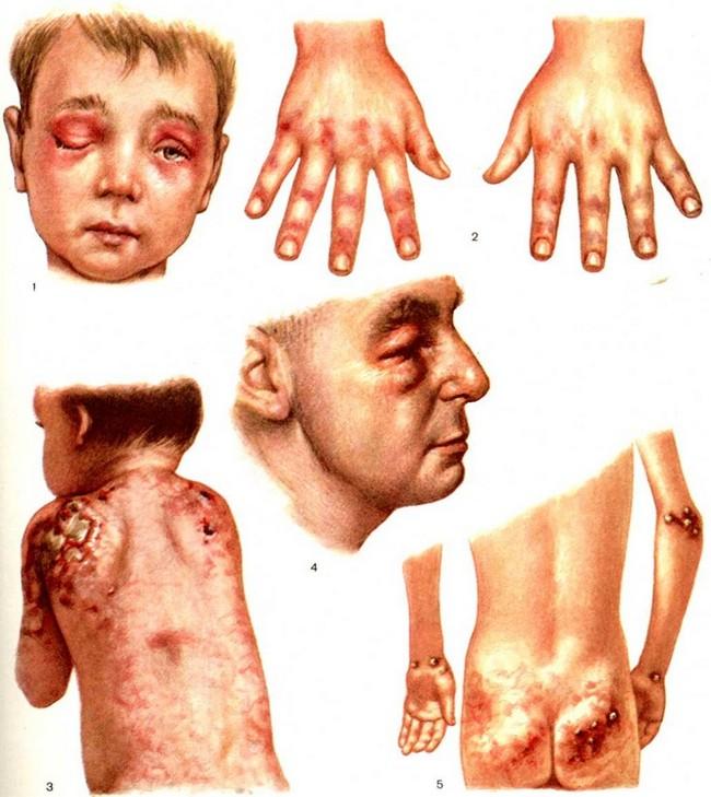 Симптомы ювенильного дерматомиозита