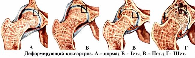 Стадии коксартроза