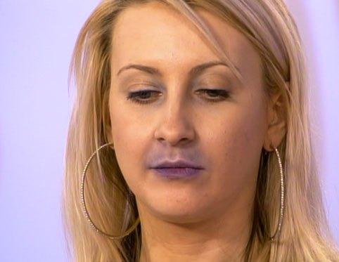 Цианоз на лице
