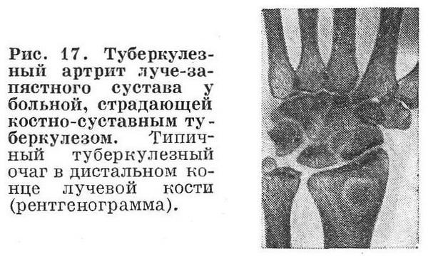 Туберкулезный инфекционный артрит