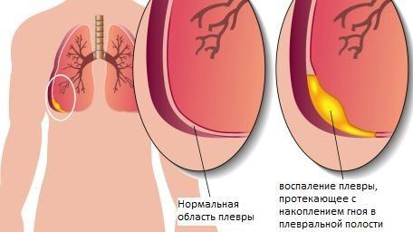 Гнойный туберкулезный плеврит