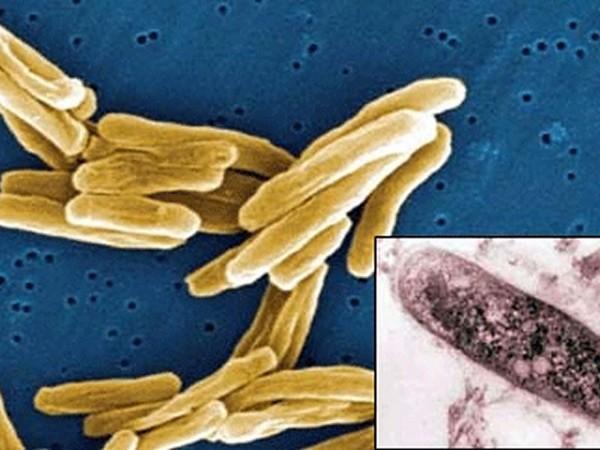 Туберкулёзная палочка