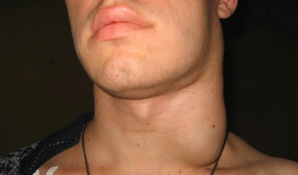 Увеличение шейных лимфоузлов при сифилисе