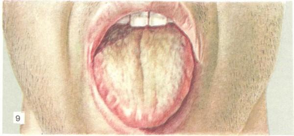 Язык больного брюшным тифом