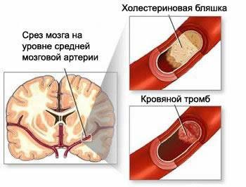 Дыхательные упражнения при атеросклерозе головного мозга