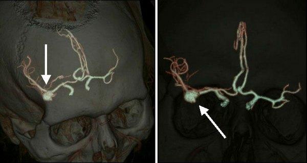 Аневризма сосудов головного мозга при проведении КТ-ангиографии