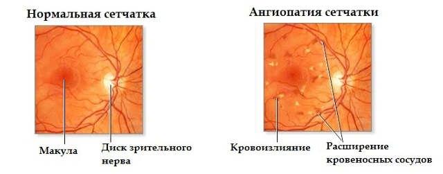 Ангиопатия сетчатки глаза: причины, симптомы, лечение
