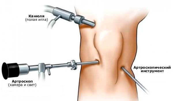 Артроскопия при разрыве мениска