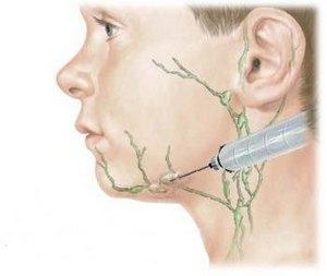 Биопсия лимфатического узла