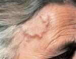 Болезнь Хортона (височный артериит)
