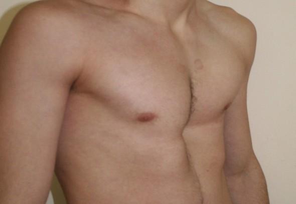 Деформация грудной клетки при синдроме Марфана