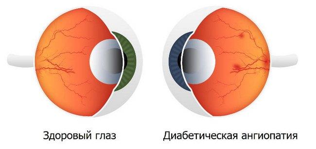 Диабетическая ангиопатия сосудов сетчатки глаза