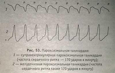 Диагностика пароксизмальной тахикардии