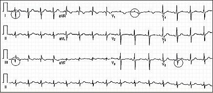 Электрокардиография при тромбоэмболии лёгочной артерии