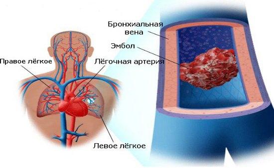Эмболия лёгочной артерии