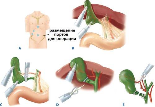 Этапы лапароскопической холецистэктомии