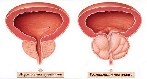 как вылечить простатит фиброз