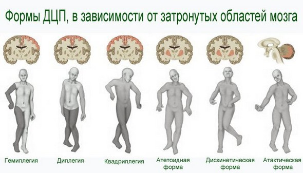 Формы ДЦП