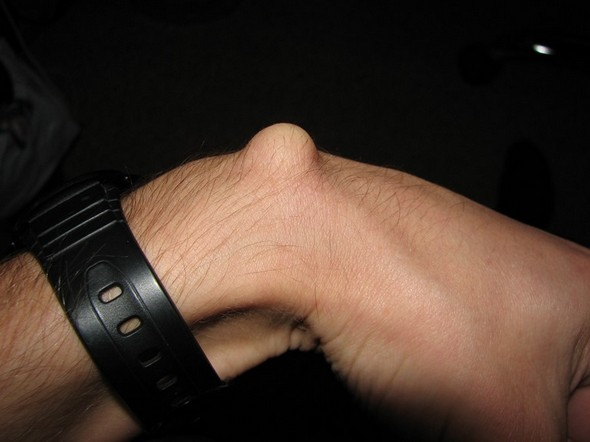 Гигрома на запястье руки лечение