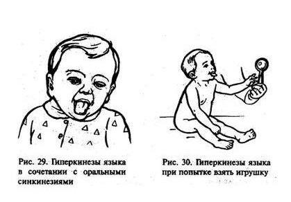 Гиперкинезы у детей