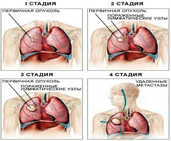 Изображение развития четырёх стадий рака
