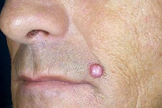Кератоакантома на лице