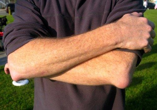 Хронический бурсит обоих локтевых суставов