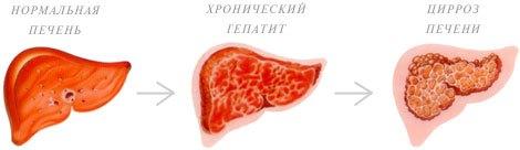 что такое хронический гепатит