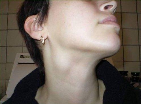 Хронический шейный лимфаденит