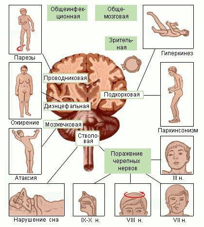 Клинические симптомы энцефалитов