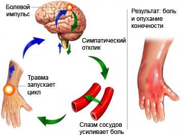 Комплексный региональный болевой синдром