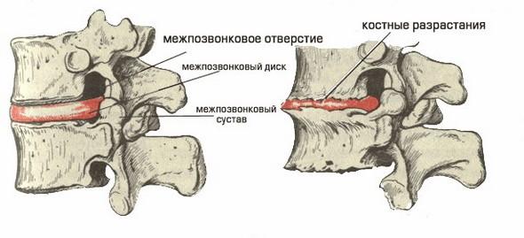 Костные разрастания при хондрозе