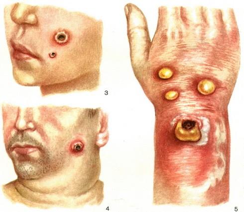 Кожные поражения при сибирской язве