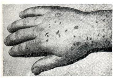 Кожные высыпания при анкилостомидозе