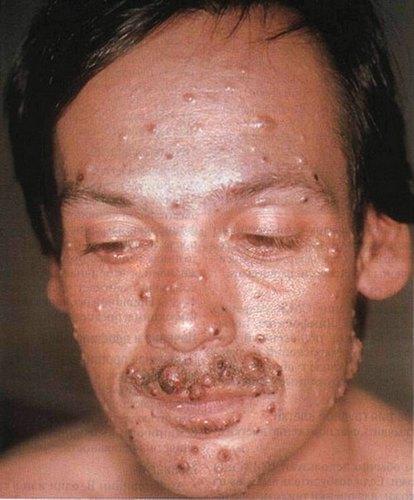 Криптококкоз кожи