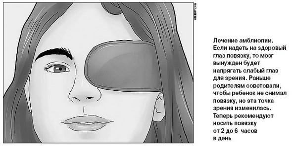 Лазерная коррекция зрения при смешанном астигматизме