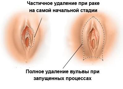 Разновидности вульвы