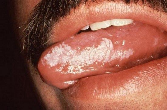 лейкоплакия языка фото начальная стадия