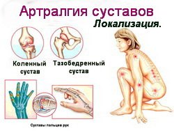 Артралгия - причины, признаки, симптомы и лечение