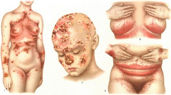 Локализация кандидоза кожи