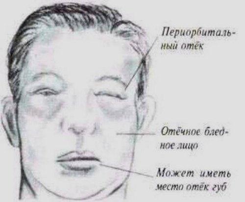 Локализация отёков при нефротическом синдроме