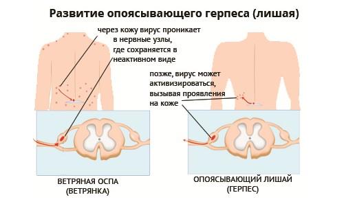 Механизм развития опоясывающего герпеса