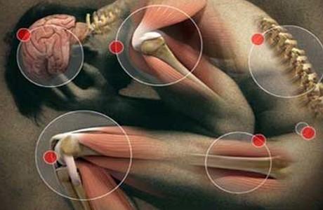 Места локализации болевых ощущений при невралгии
