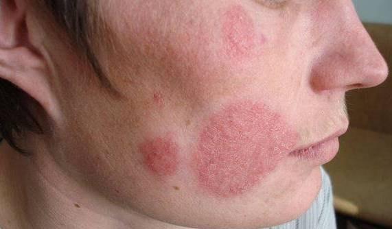 Микоз гладкой кожи
