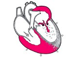 Митральный стеноз (стеноз митрального клапана)