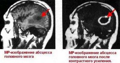 Мр-изображение абсцесса головного мозга